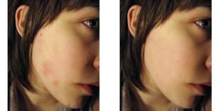 Видалення прищів, плям на шкірі обличчя за допомогою Фотошоп
